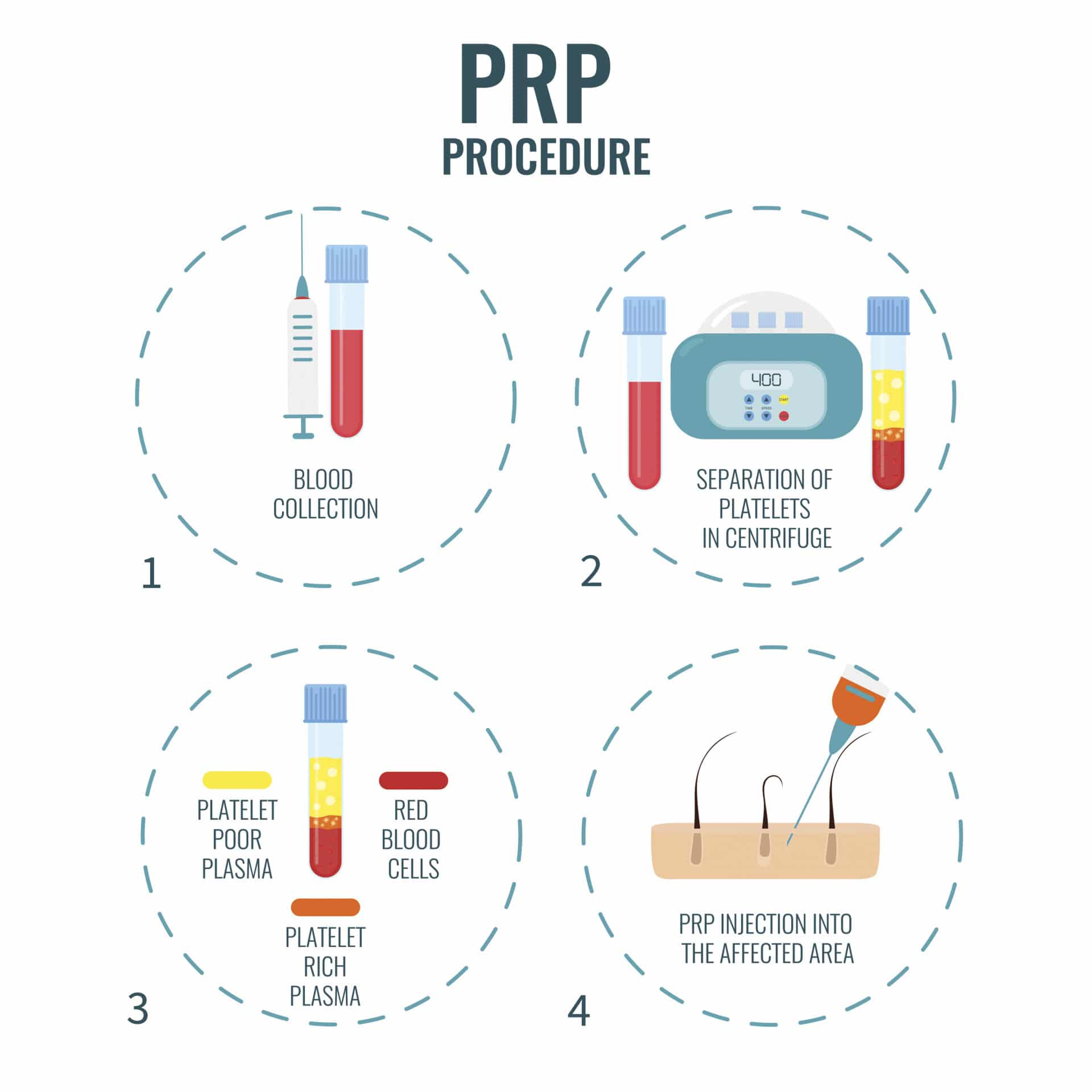 PRP_Procedure_Image